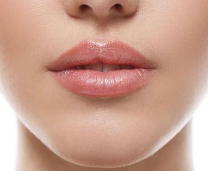Lippen Unterspritzung