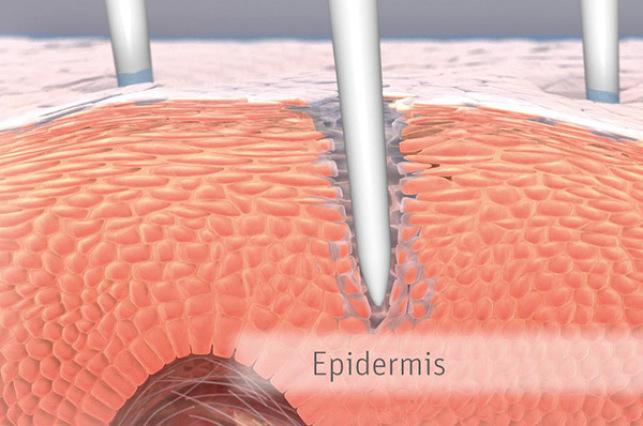 Microneedling Hautbild Verbesserung Bremen